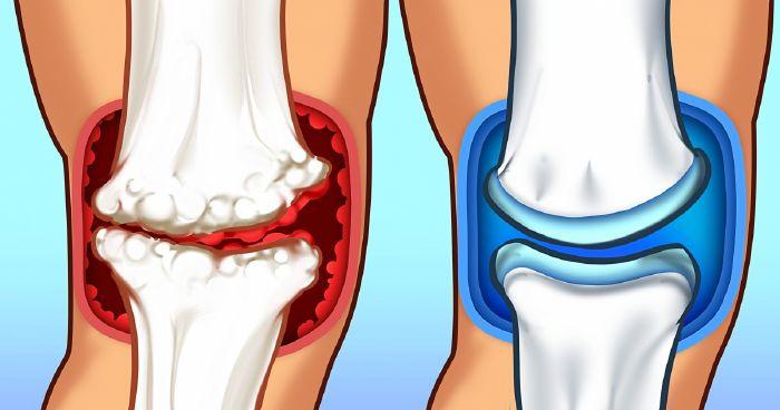 a térd orvosi epe ízületi gyulladása