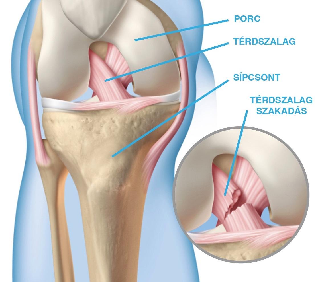 gono arthrosis kezelés lábujjak jelentese