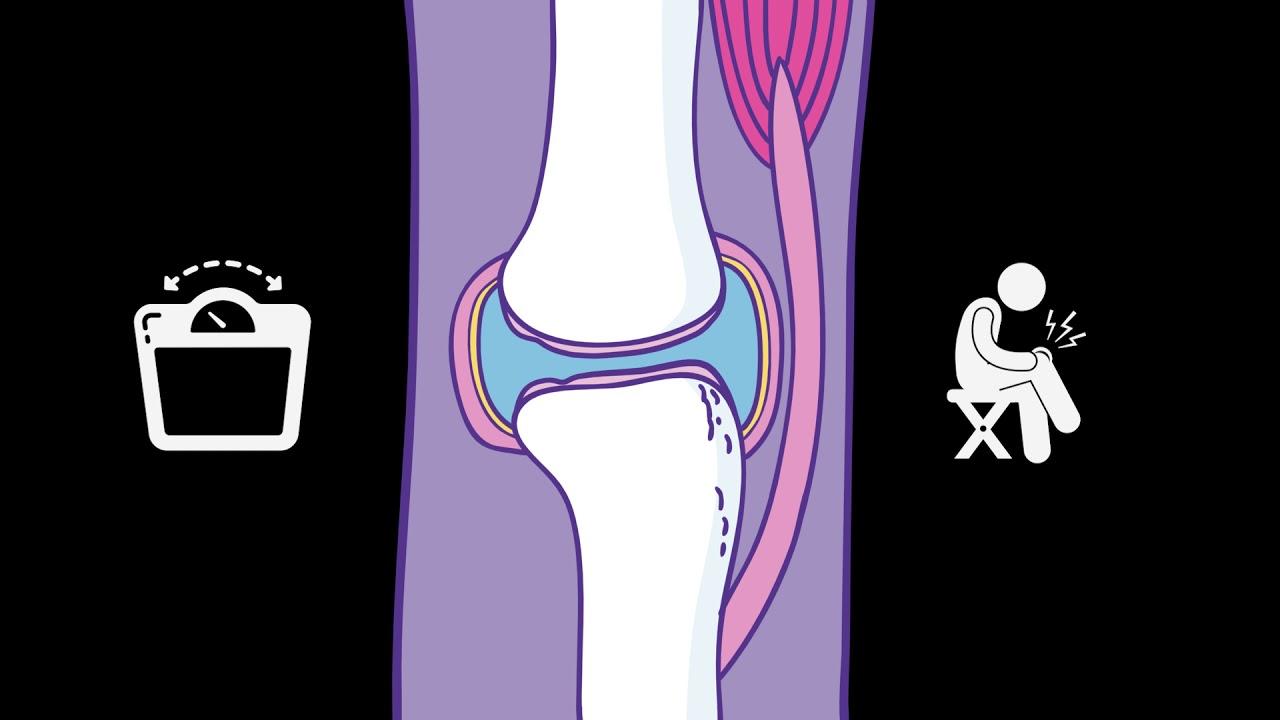Feodosia ízületi kezelés, Az osteoarthritis kezelése feodosiában