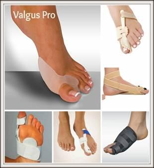 A nagy lábujj artrózisának műtéti kezelése