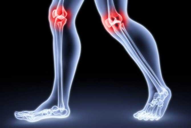 a lábak ízületei fájnak az osteoarthrosisról