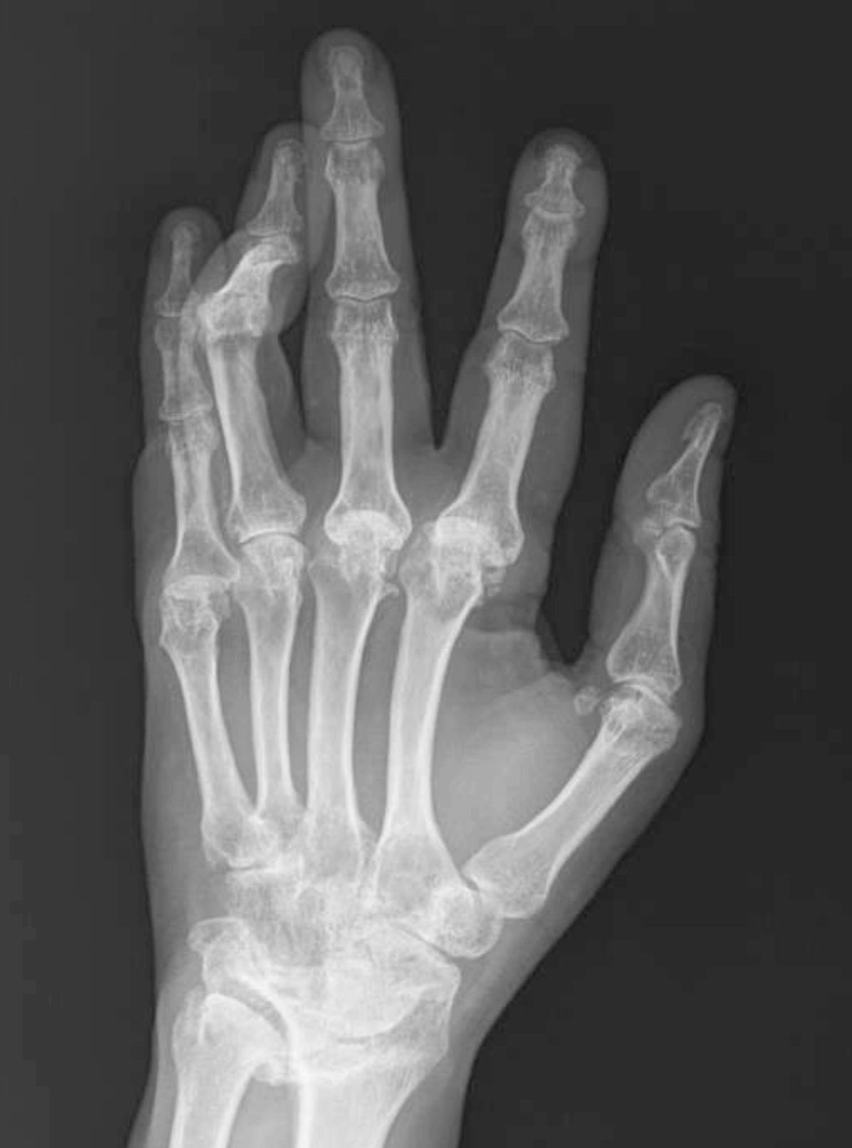 mi kezeli a rheumatoid arthritis