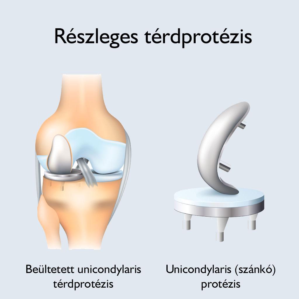 Tabletták térdízületi fájdalmakhoz, Szimpatika – Mikrofonnal hallható a térd betegsége