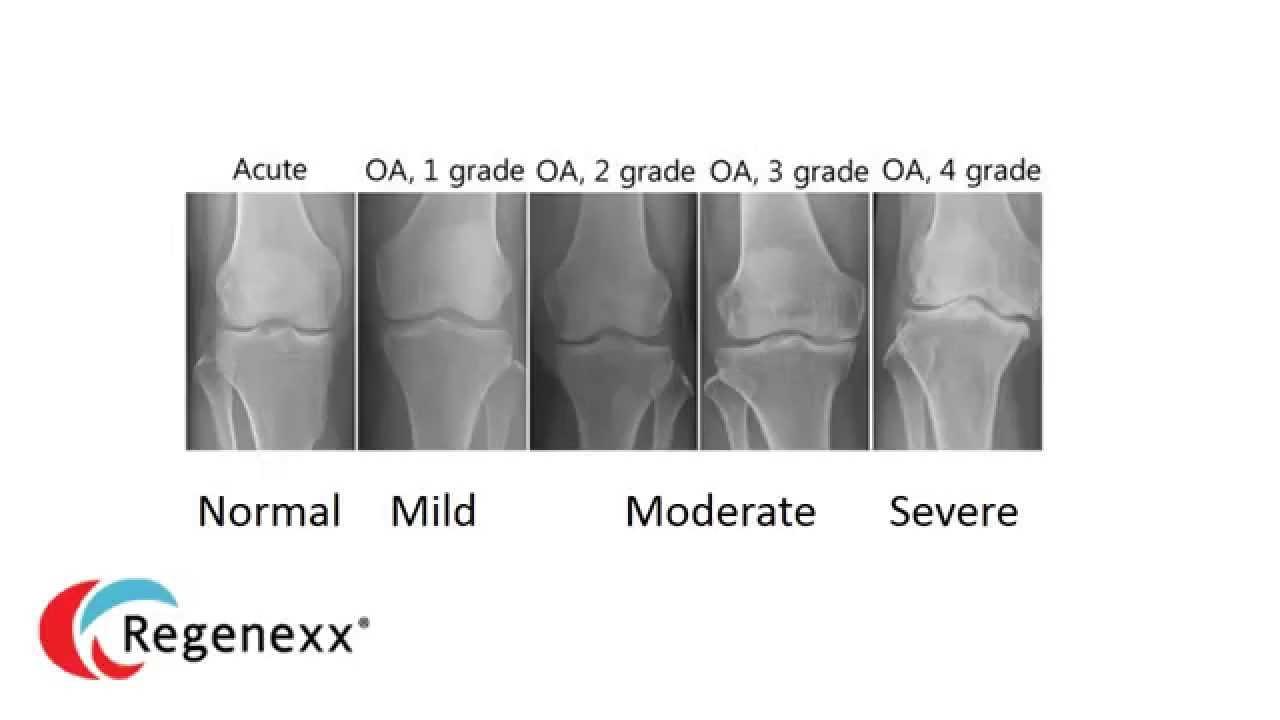 osteoarthritis kezelése Ausztriában