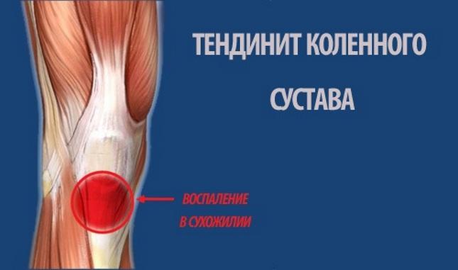 lehetséges az ízület melegítése rheumatoid arthritisben