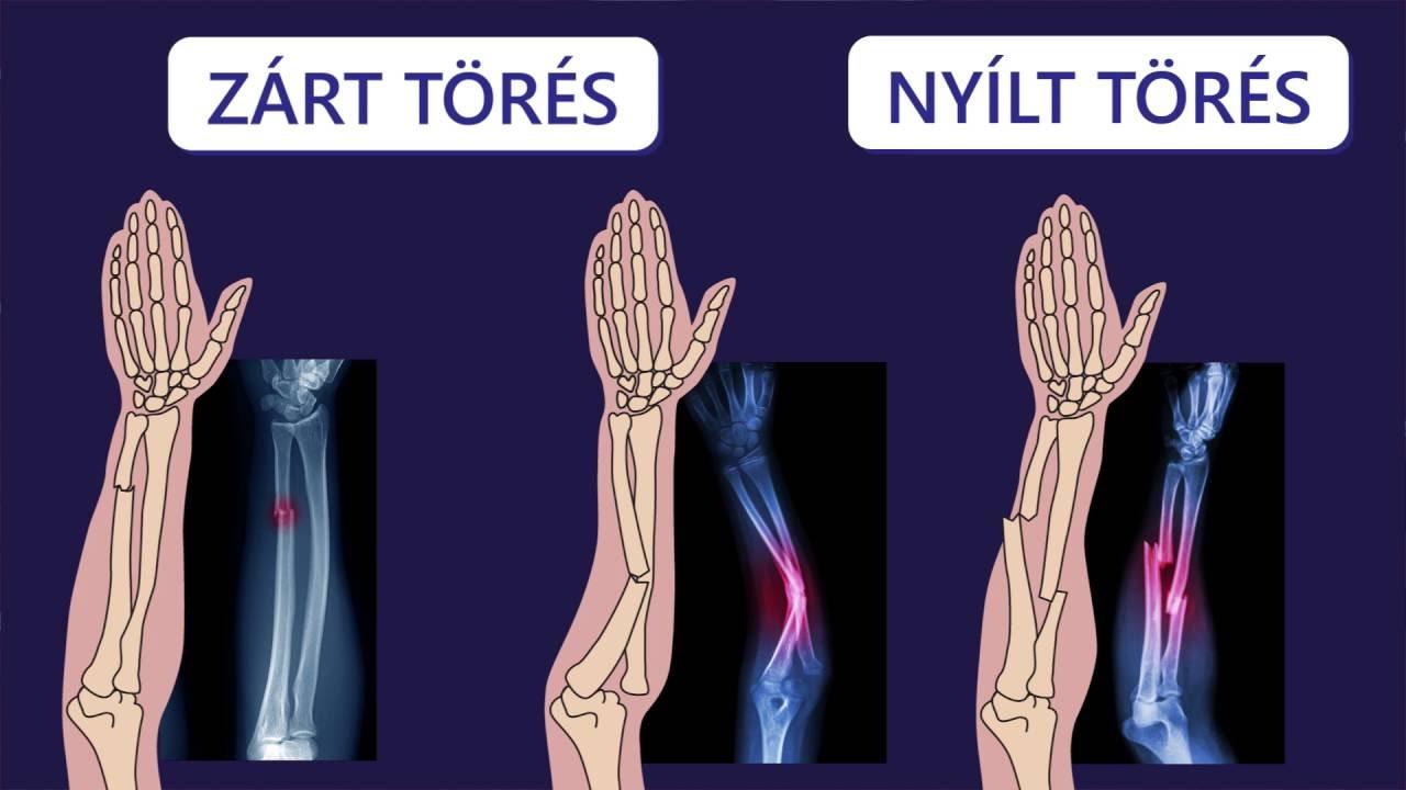csontok és ízületek törései artrózis kezelése osztenillal