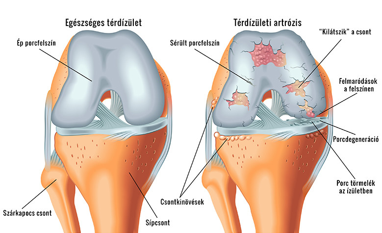 fenyő ízületi fájdalom