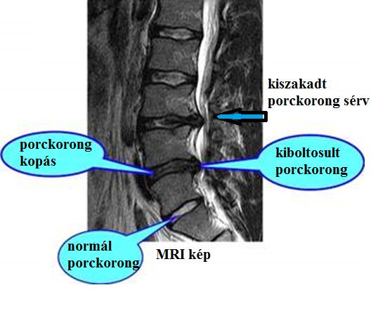 a caries ízületi betegségeket okoz a csípőízület artrózisának kezelési rendje